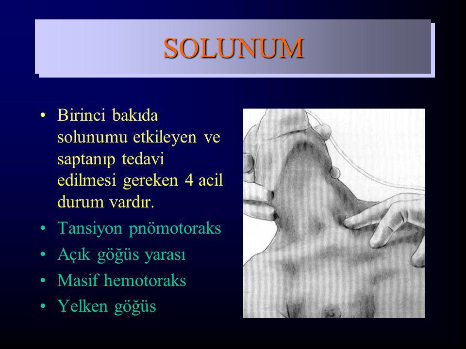 SOLUNUM Birinci bakıda solunumu etkileyen ve saptanıp tedavi edilmesi gereken 4 acil durum vardır. Tansiyon pnömotoraks.