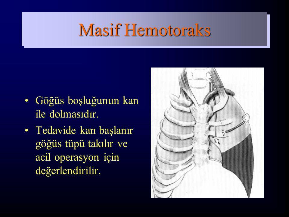 Masif Hemotoraks Göğüs boşluğunun kan ile dolmasıdır.
