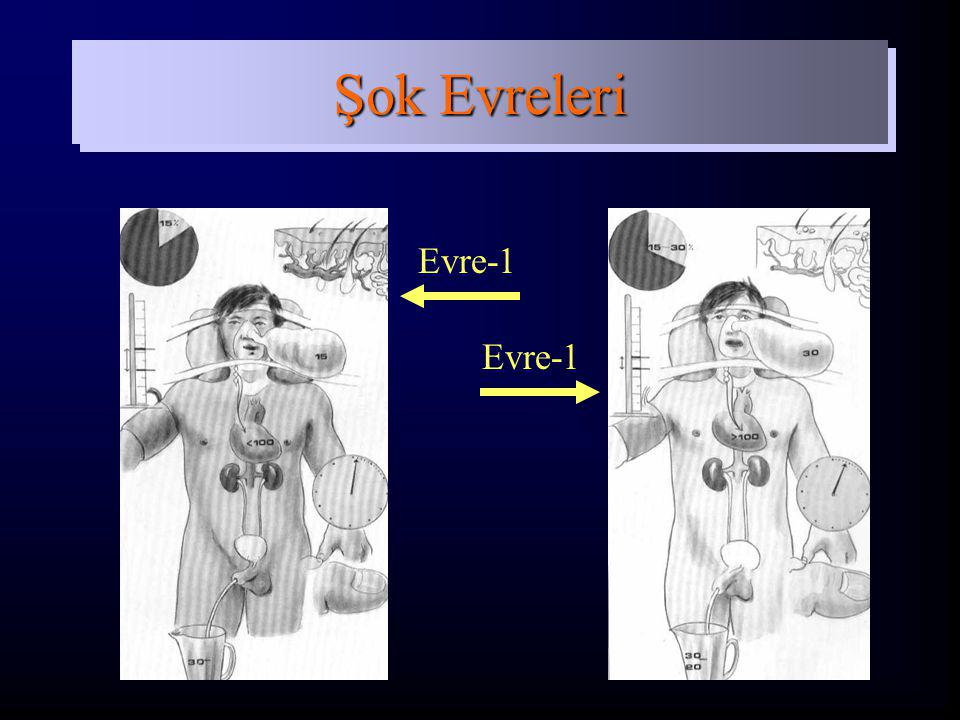Şok Evreleri Evre-1 Evre-1