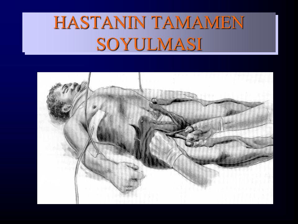 HASTANIN TAMAMEN SOYULMASI