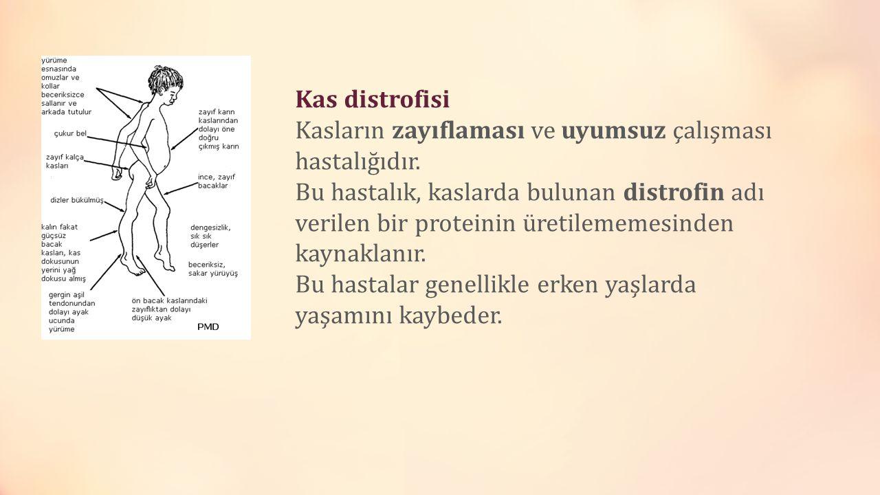 Kas distrofisi Kasların zayıflaması ve uyumsuz çalışması hastalığıdır.