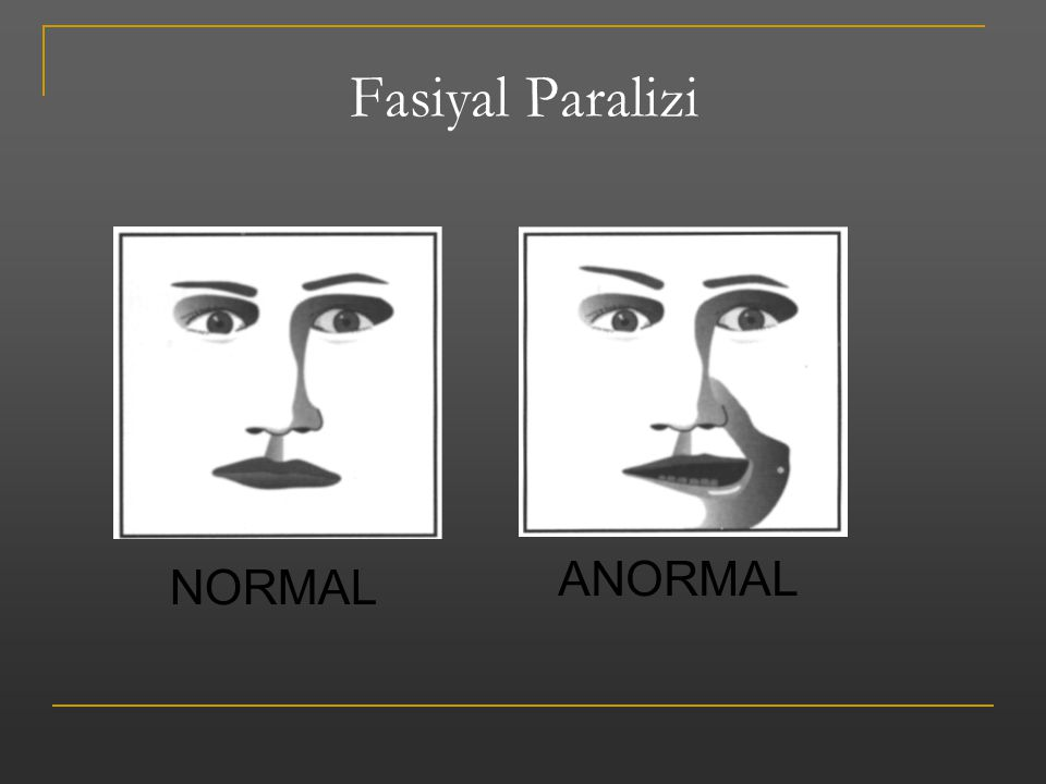 Fasiyal Paralizi ANORMAL NORMAL EMS Response: Face Value