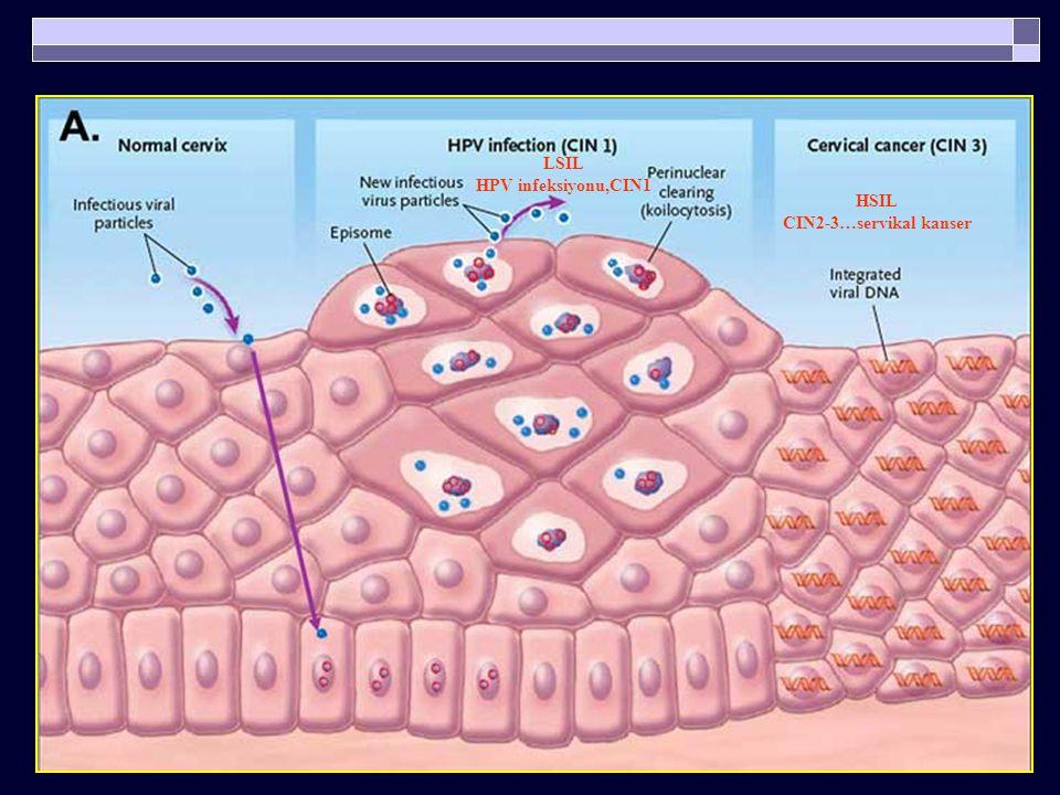 LSIL HPV infeksiyonu,CIN1 HSIL CIN2-3…servikal kanser