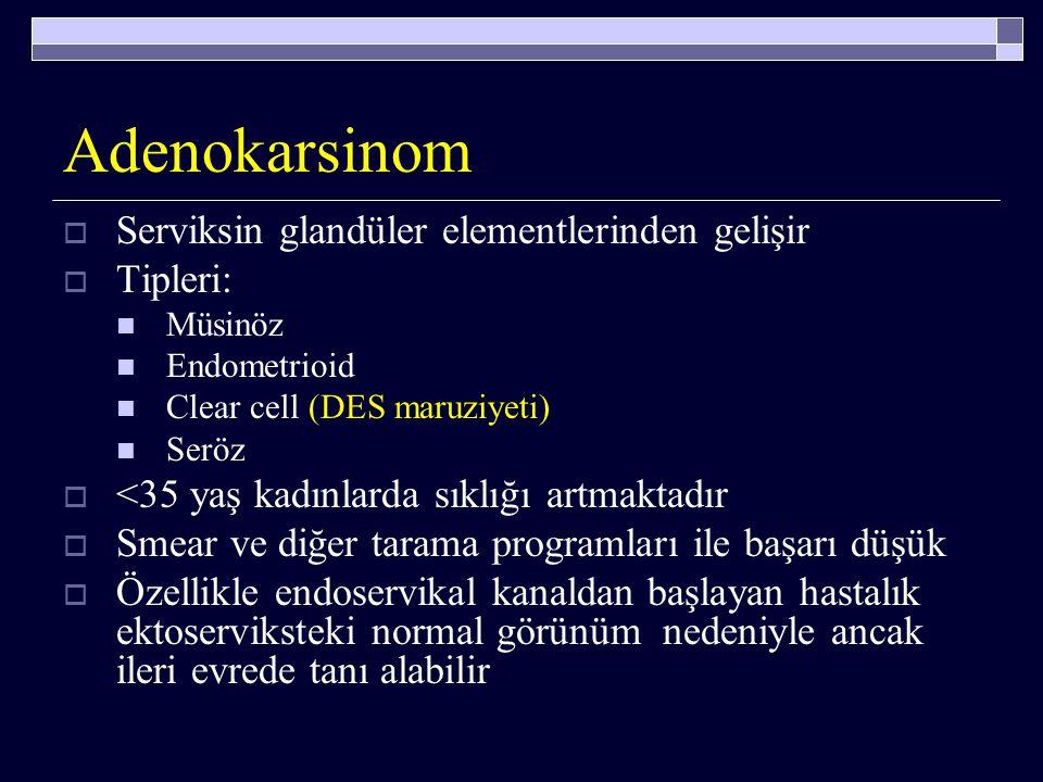 Adenokarsinom Serviksin glandüler elementlerinden gelişir Tipleri: