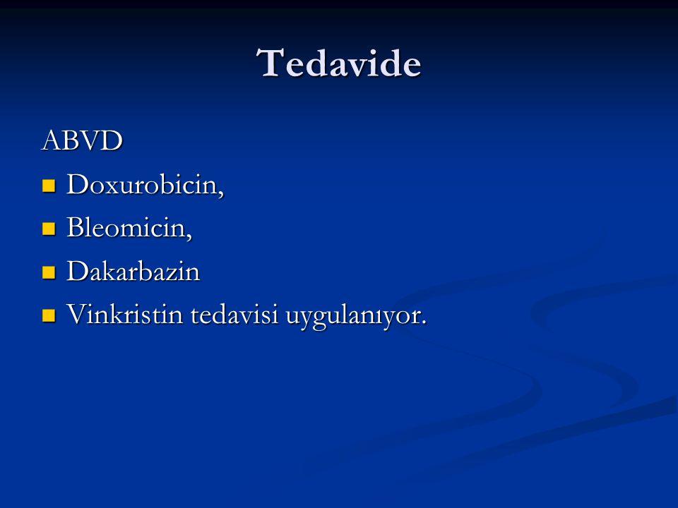 Tedavide ABVD Doxurobicin, Bleomicin, Dakarbazin