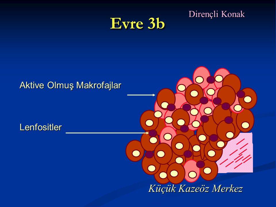 Evre 3b Küçük Kazeöz Merkez Dirençli Konak Aktive Olmuş Makrofajlar
