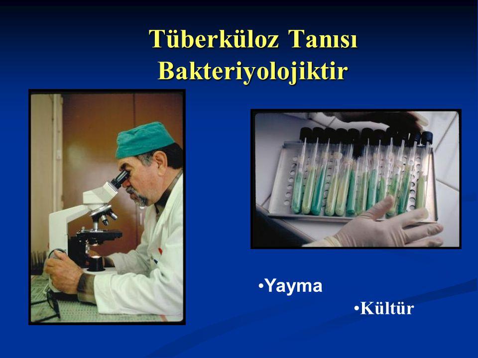 Tüberküloz Tanısı Bakteriyolojiktir
