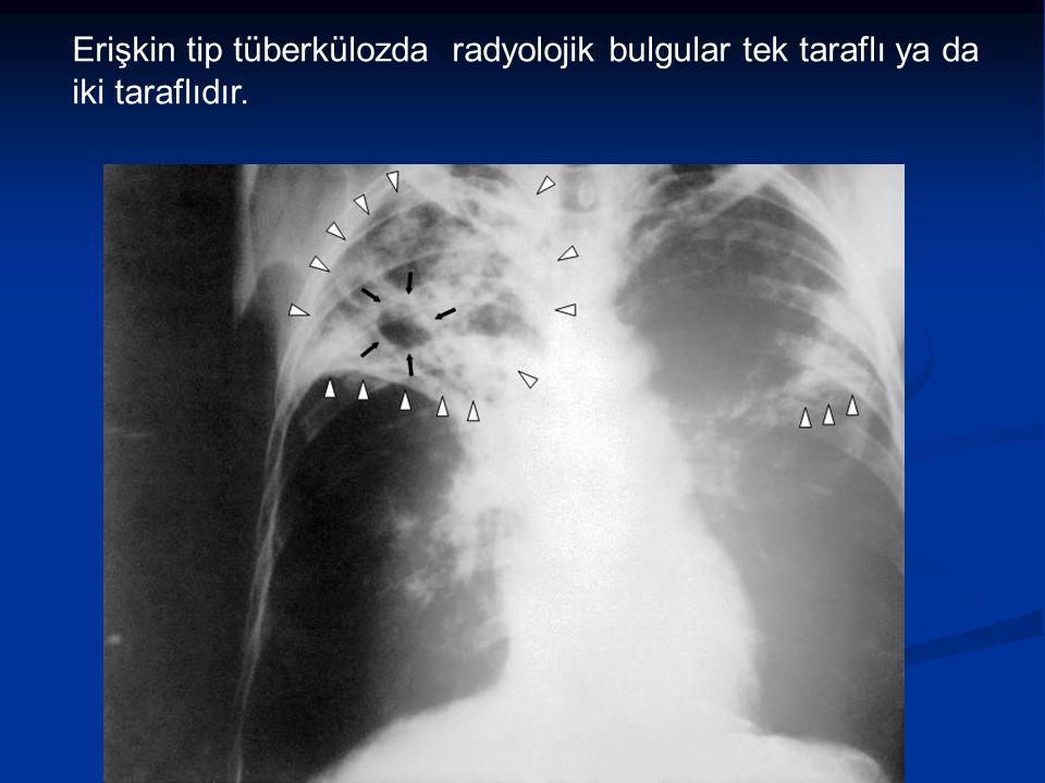 Erişkin tip tüberkülozda radyolojik bulgular tek taraflı ya da