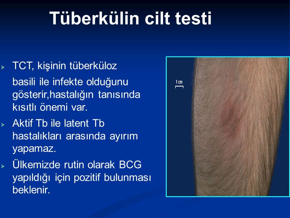 Tüberkülin cilt testi TCT, kişinin tüberküloz