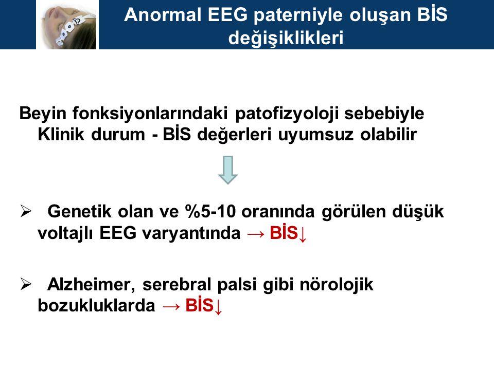 Anormal EEG paterniyle oluşan BİS değişiklikleri