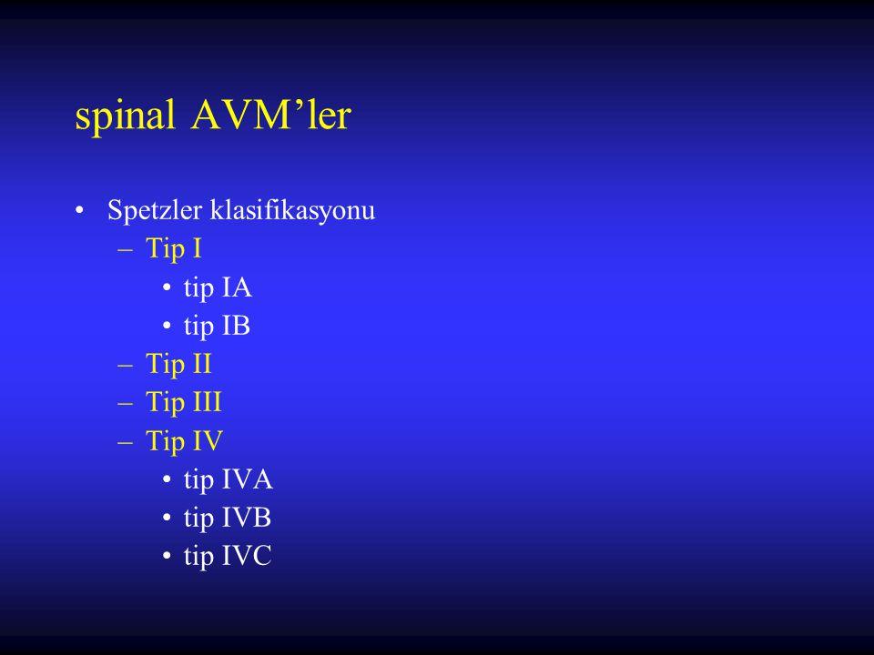 spinal AVM'ler Spetzler klasifikasyonu Tip I tip IA tip IB Tip II