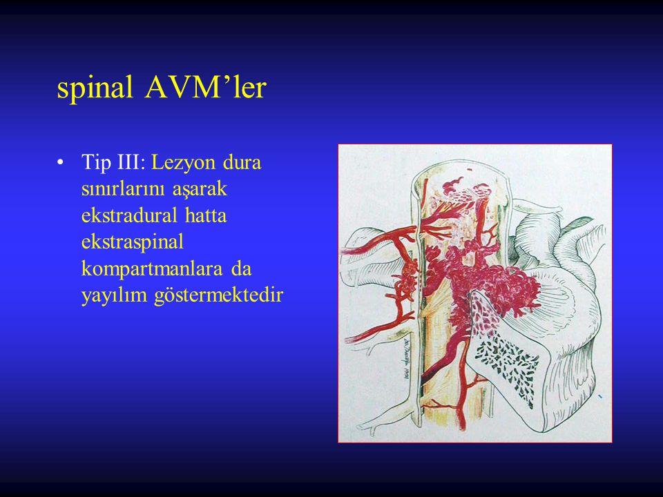 spinal AVM'ler Tip III: Lezyon dura sınırlarını aşarak ekstradural hatta ekstraspinal kompartmanlara da yayılım göstermektedir.