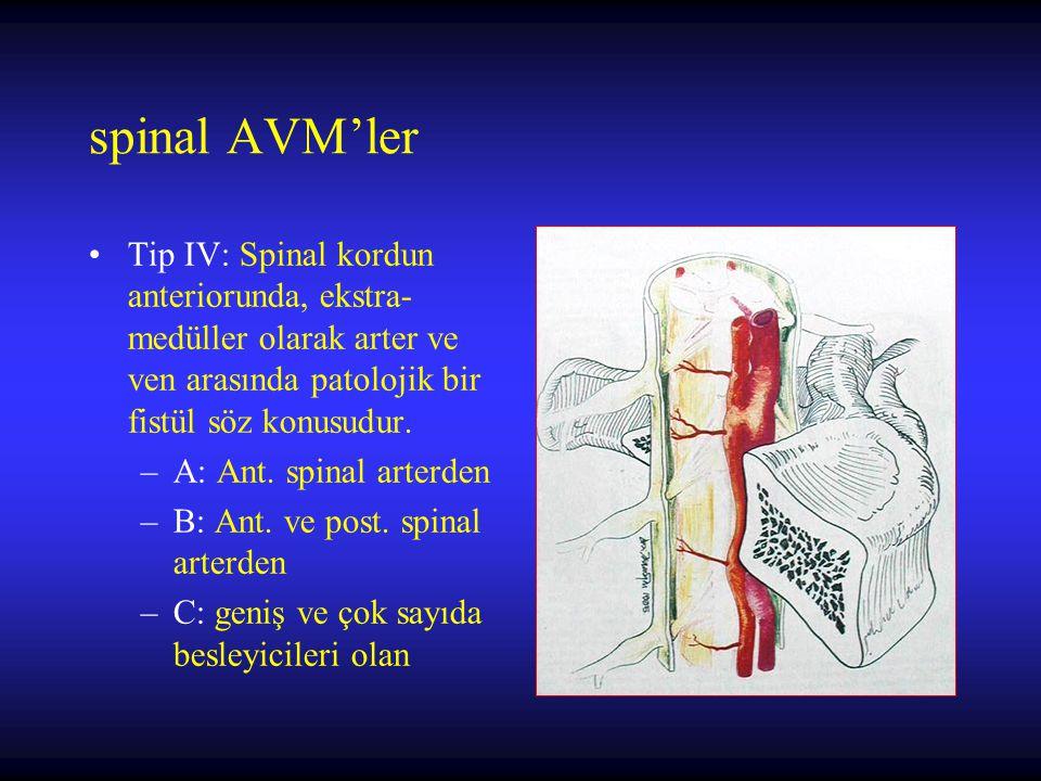 spinal AVM'ler Tip IV: Spinal kordun anteriorunda, ekstra- medüller olarak arter ve ven arasında patolojik bir fistül söz konusudur.