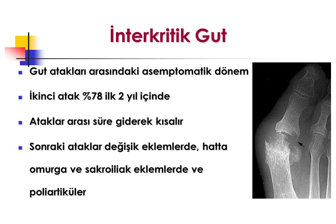 İnterkritik Gut Gut atakları arasındaki asemptomatik dönem