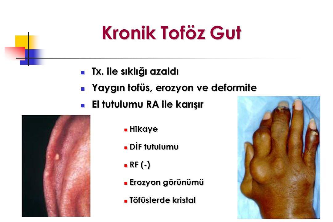 Kronik Toföz Gut Tx. ile sıklığı azaldı
