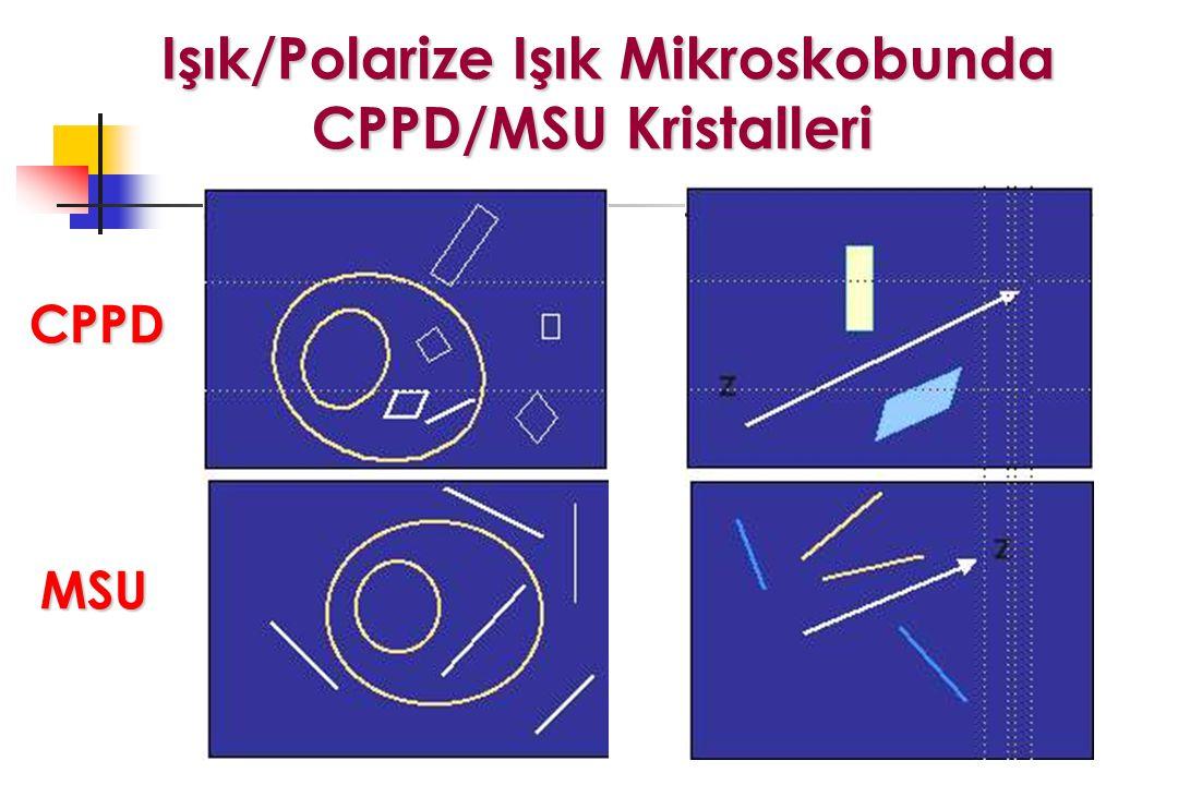 Işık/Polarize Işık Mikroskobunda CPPD/MSU Kristalleri