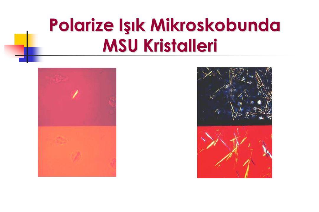 Polarize Işık Mikroskobunda MSU Kristalleri