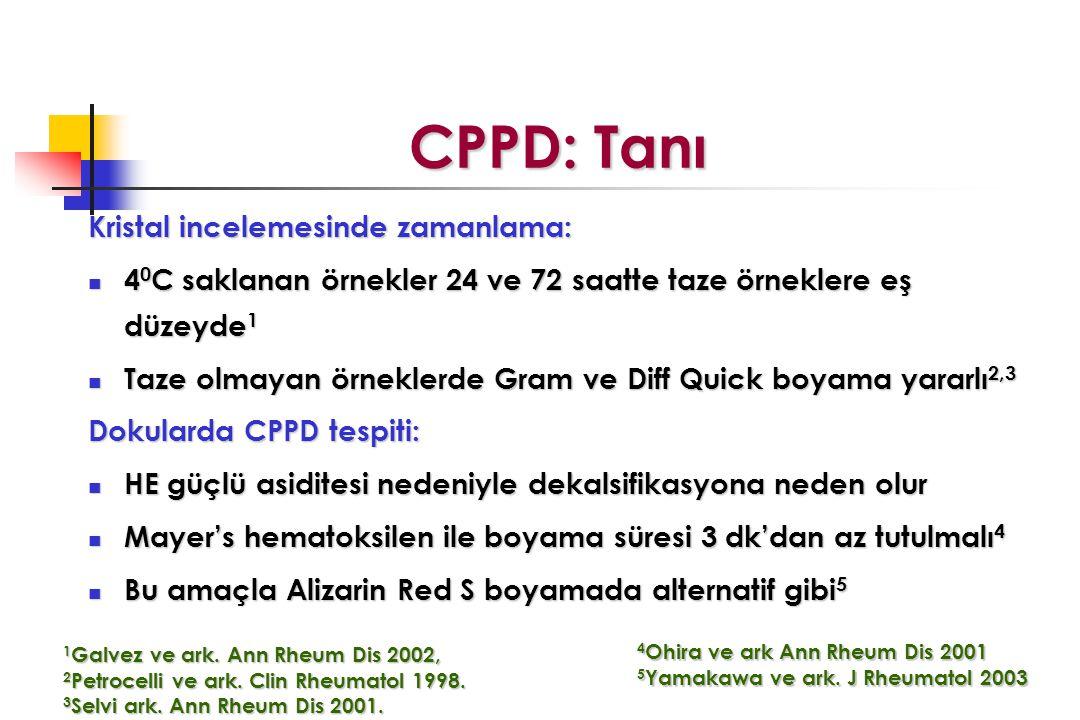 CPPD: Tanı Kristal incelemesinde zamanlama: