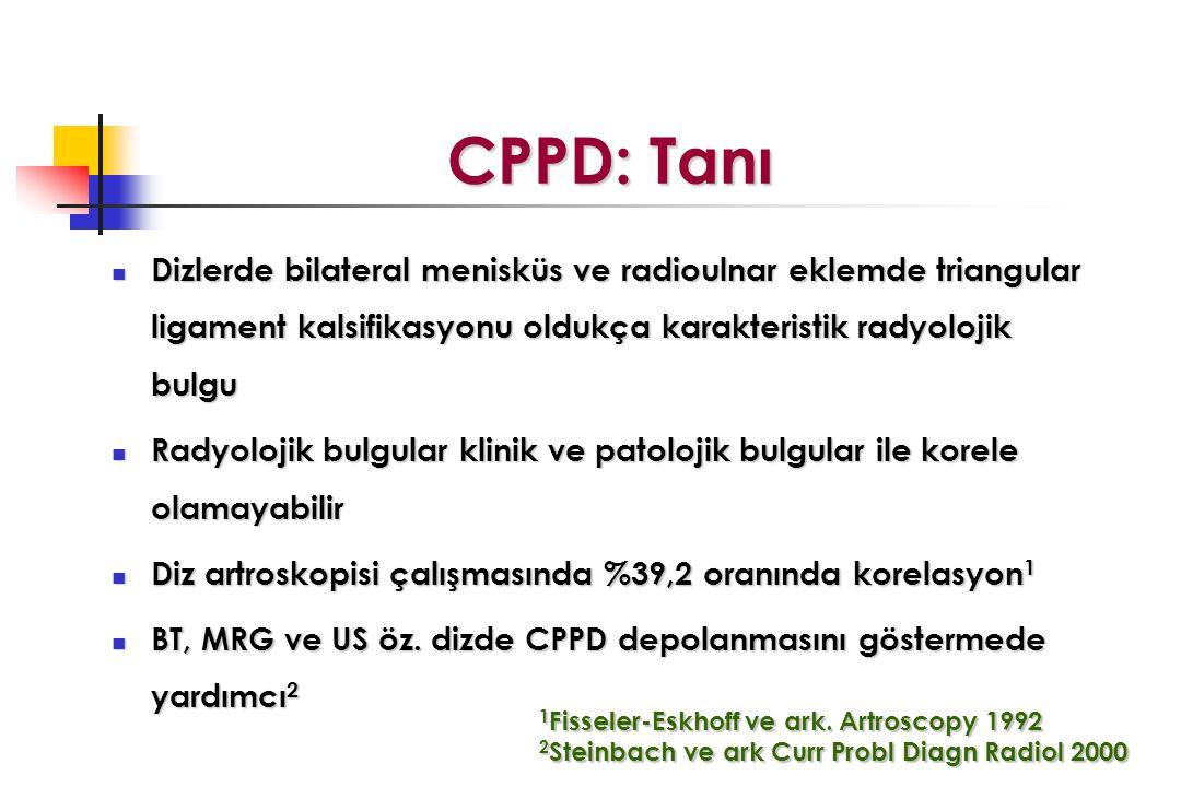 CPPD: Tanı Dizlerde bilateral menisküs ve radioulnar eklemde triangular ligament kalsifikasyonu oldukça karakteristik radyolojik bulgu.