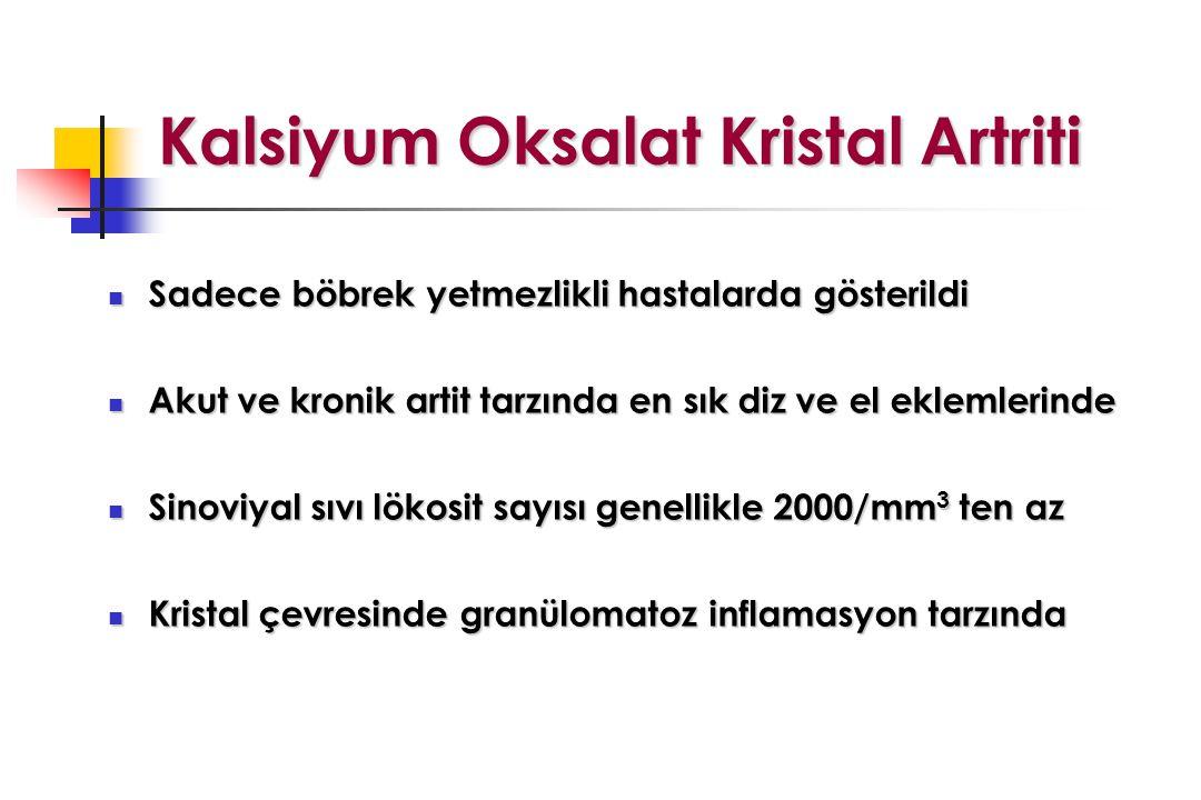Kalsiyum Oksalat Kristal Artriti
