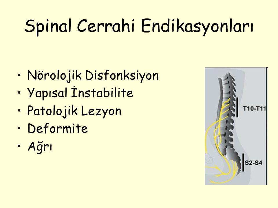 Spinal Cerrahi Endikasyonları