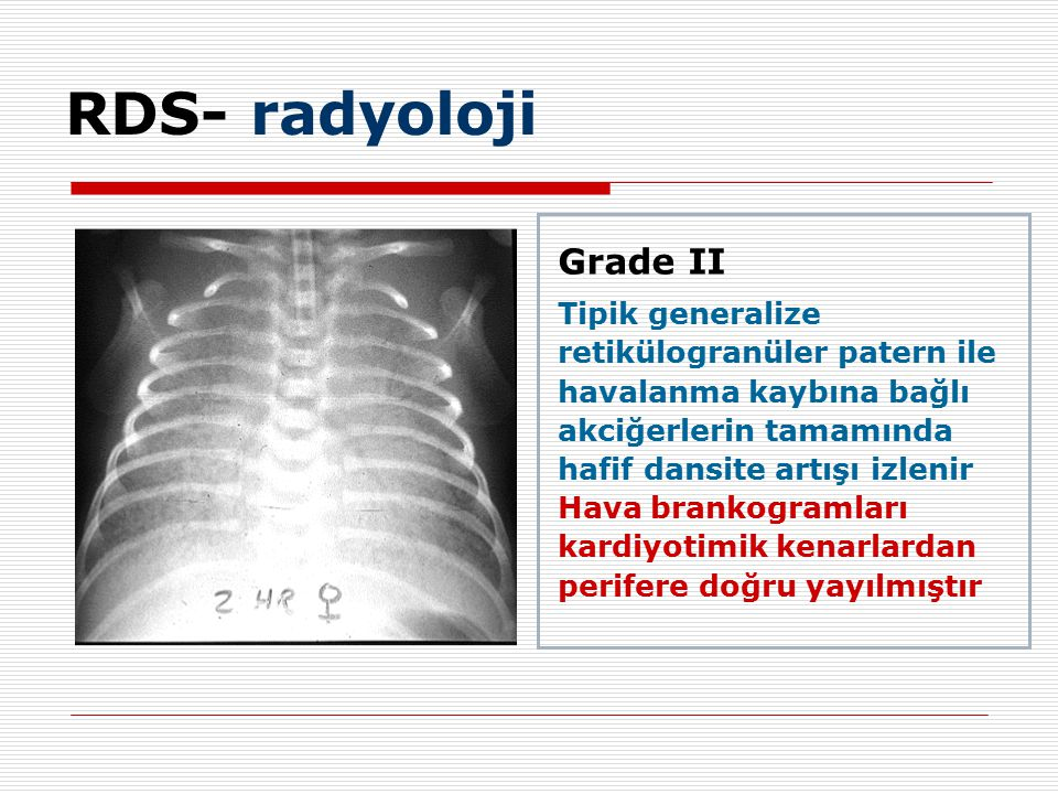 RDS- radyoloji Grade II