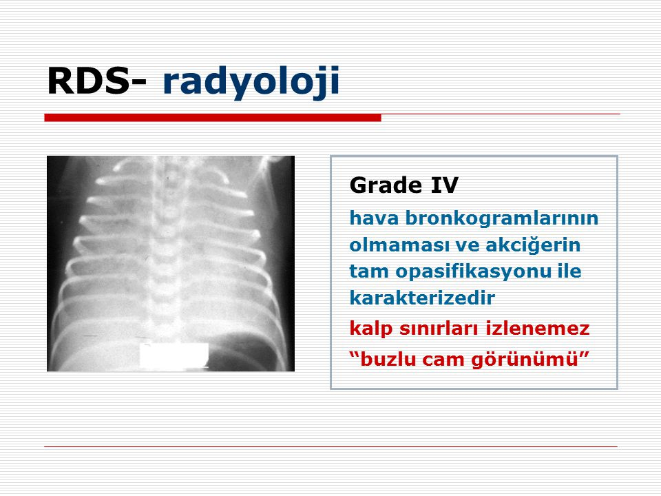 RDS- radyoloji Grade IV