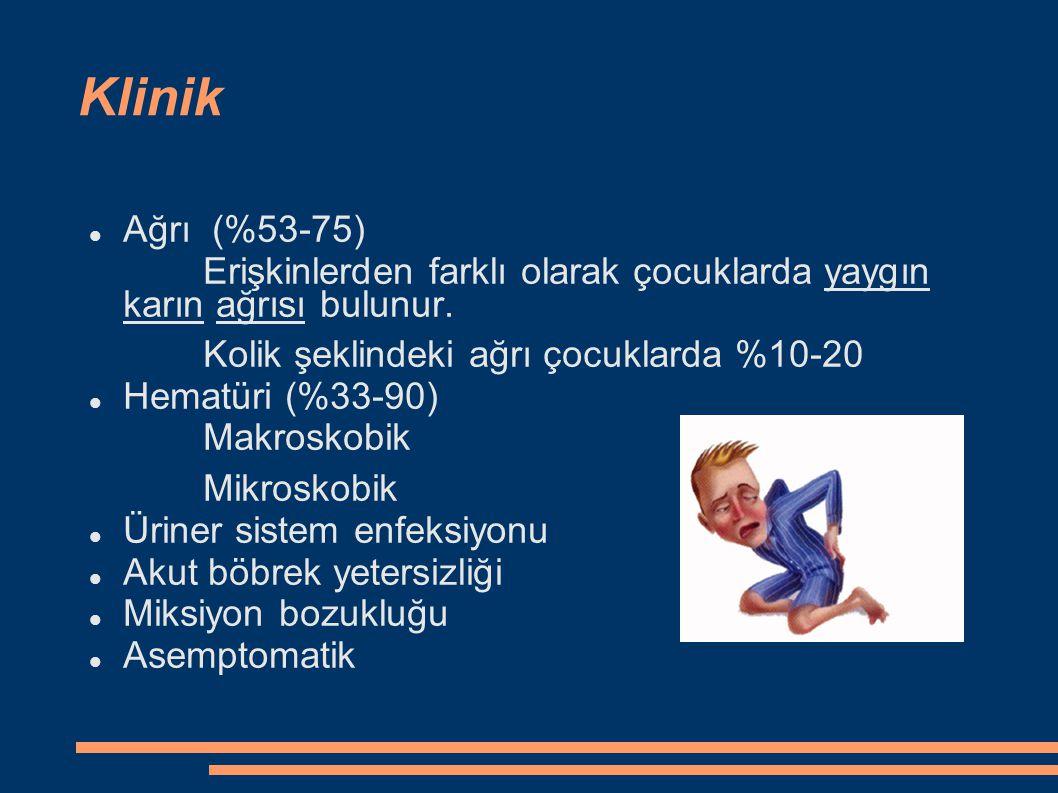 Klinik Ağrı (%53-75) Erişkinlerden farklı olarak çocuklarda yaygın karın ağrısı bulunur. Kolik şeklindeki ağrı çocuklarda %10-20.