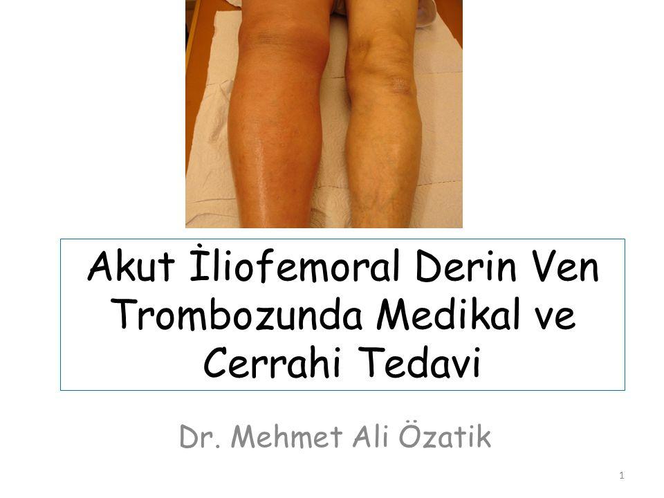 Akut İliofemoral Derin Ven Trombozunda Medikal ve Cerrahi Tedavi