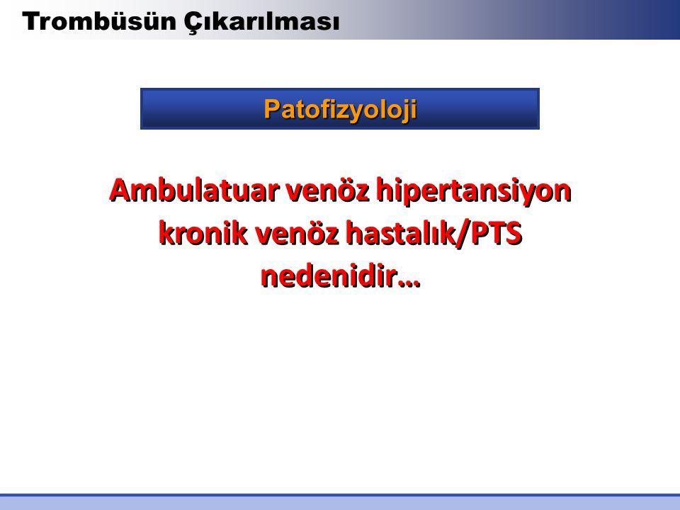 Ambulatuar venöz hipertansiyon kronik venöz hastalık/PTS nedenidir…