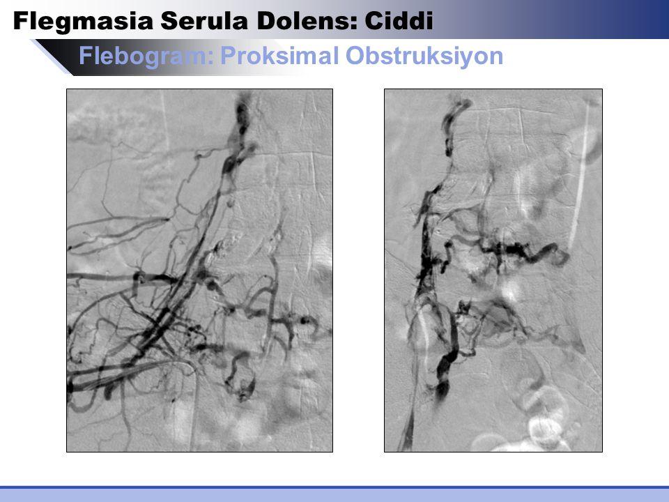 Flegmasia Serula Dolens: Ciddi