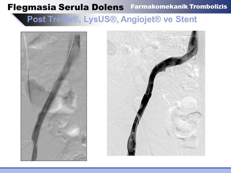 Flegmasia Serula Dolens Post Trellis®, LysUS®, Angiojet® ve Stent