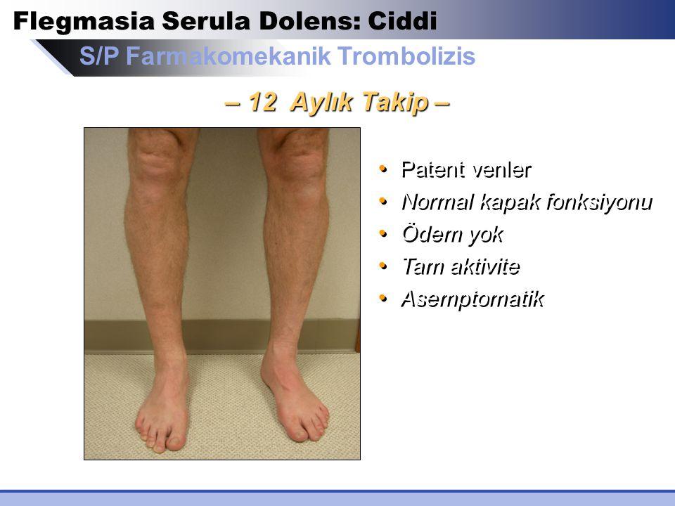 Flegmasia Serula Dolens: Ciddi S/P Farmakomekanik Trombolizis