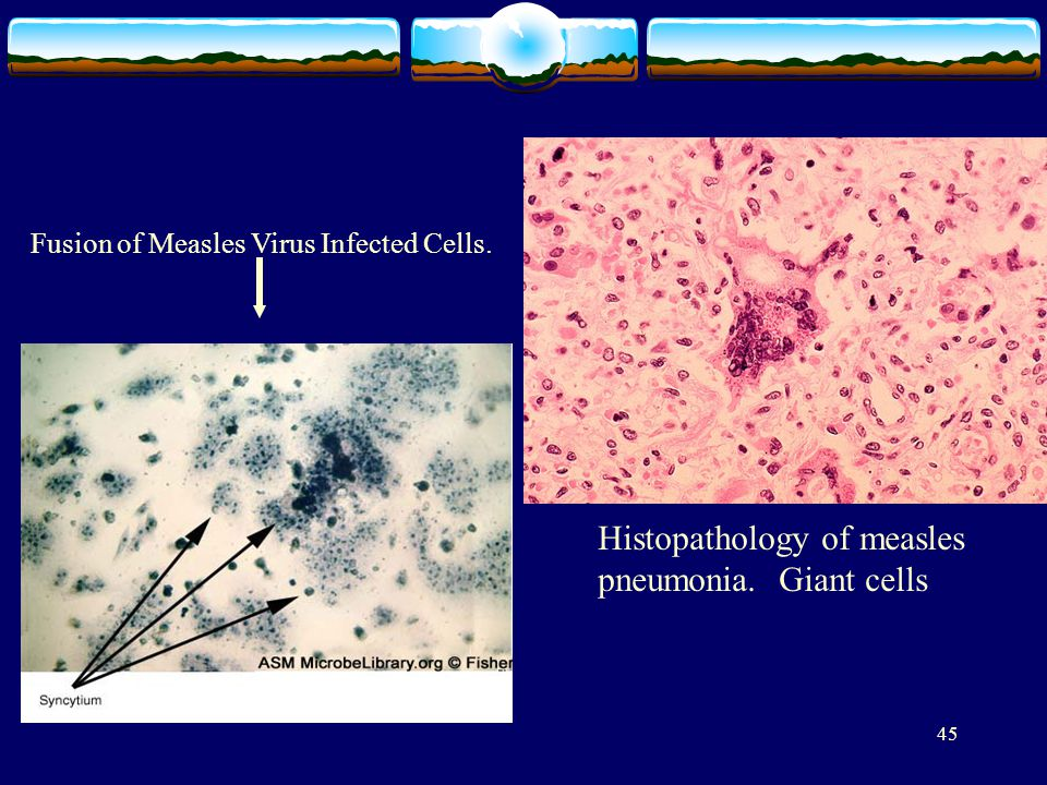Histopathology of measles pneumonia. Giant cells