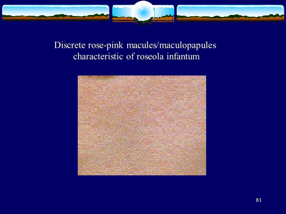 Discrete rose-pink macules/maculopapules