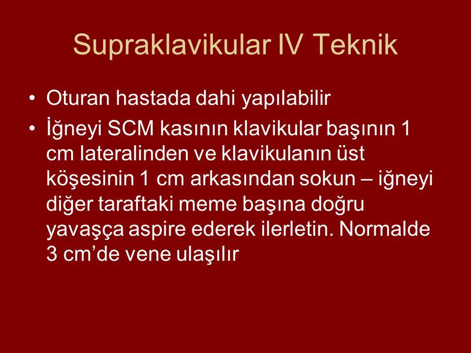Supraklavikular IV Teknik
