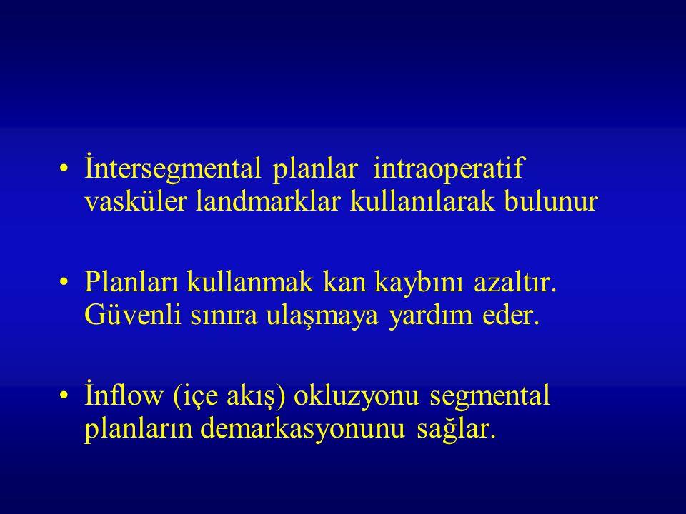 İntersegmental planlar intraoperatif vasküler landmarklar kullanılarak bulunur