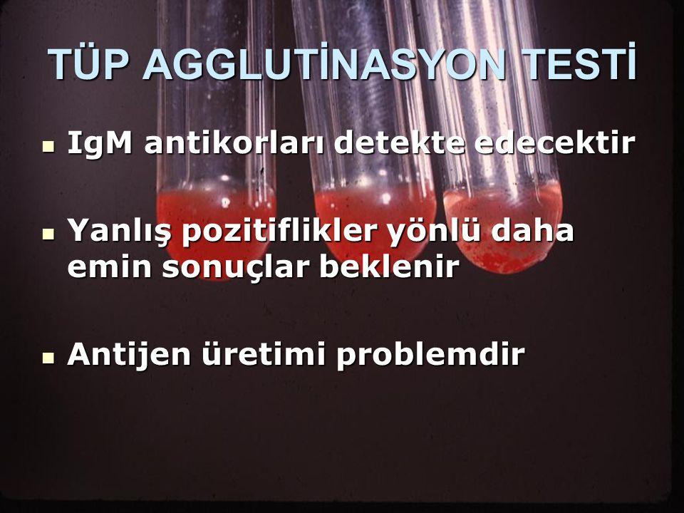 TÜP AGGLUTİNASYON TESTİ