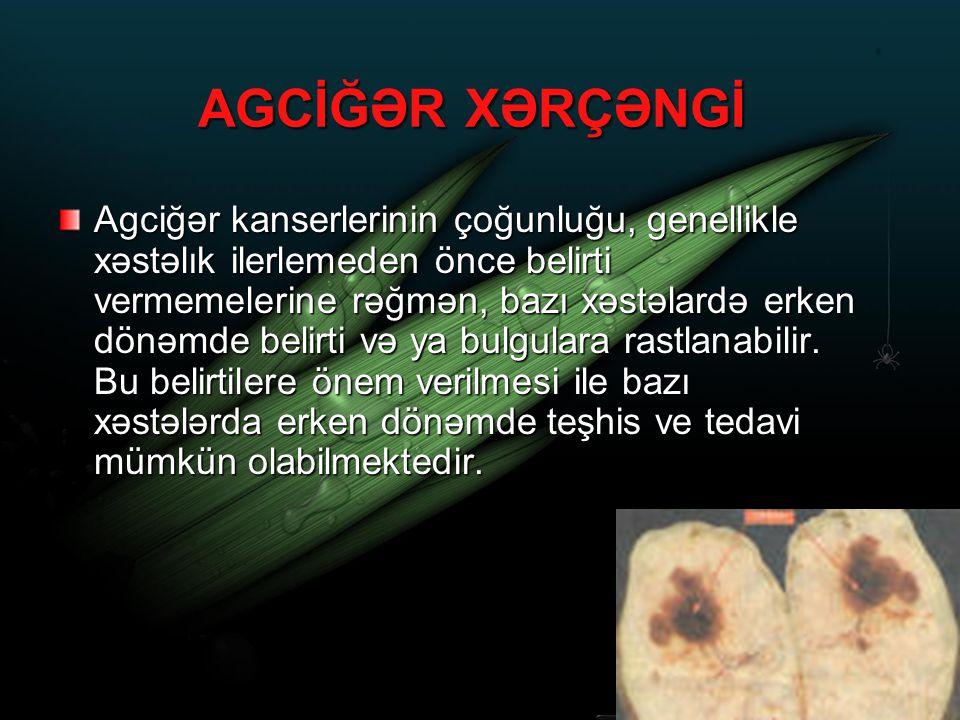 AGCİĞƏR XƏRÇƏNGİ