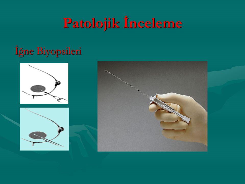 Patolojik İnceleme İğne Biyopsileri