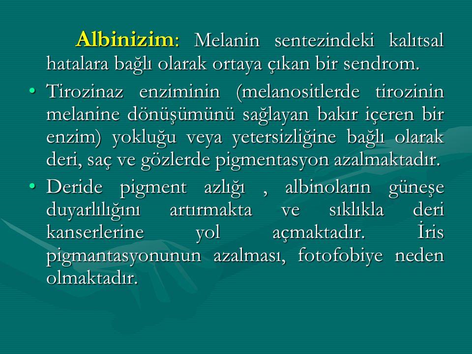 Albinizim: Melanin sentezindeki kalıtsal hatalara bağlı olarak ortaya çıkan bir sendrom.