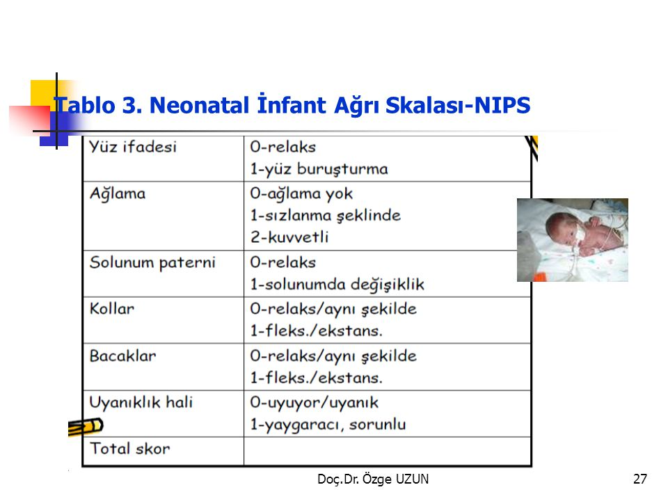 Tablo 3. Neonatal İnfant Ağrı Skalası-NIPS