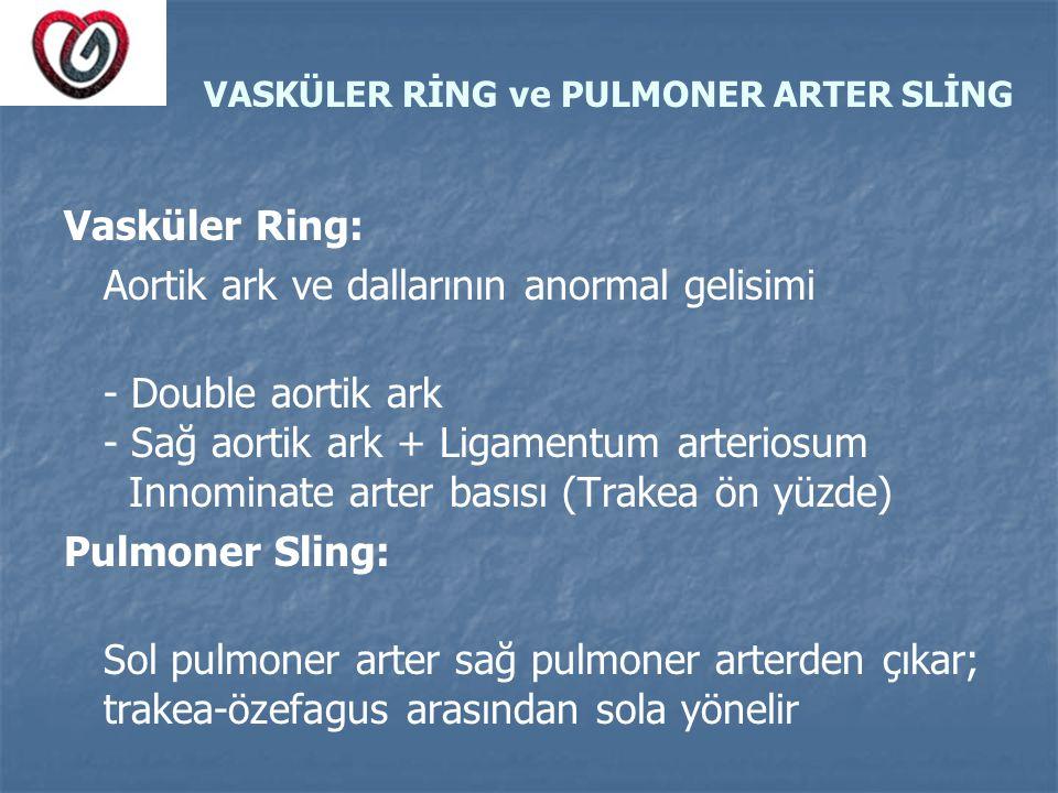 VASKÜLER RİNG ve PULMONER ARTER SLİNG