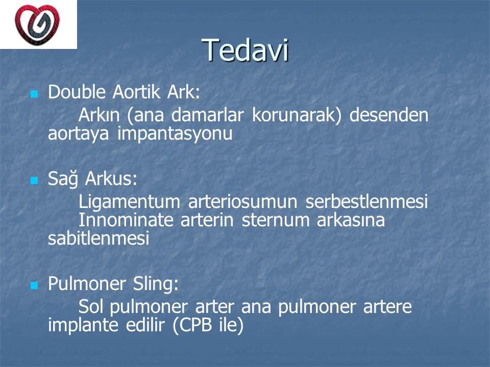 Tedavi Double Aortik Ark: