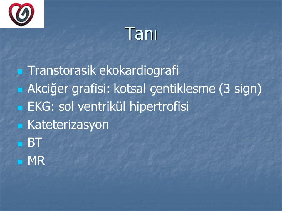 Tanı Transtorasik ekokardiografi
