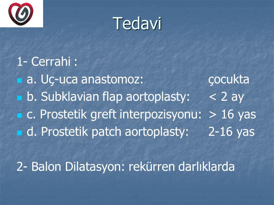 Tedavi 1- Cerrahi : a. Uç-uca anastomoz: çocukta