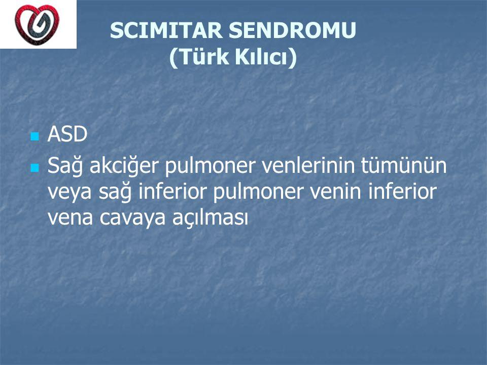 SCIMITAR SENDROMU (Türk Kılıcı)