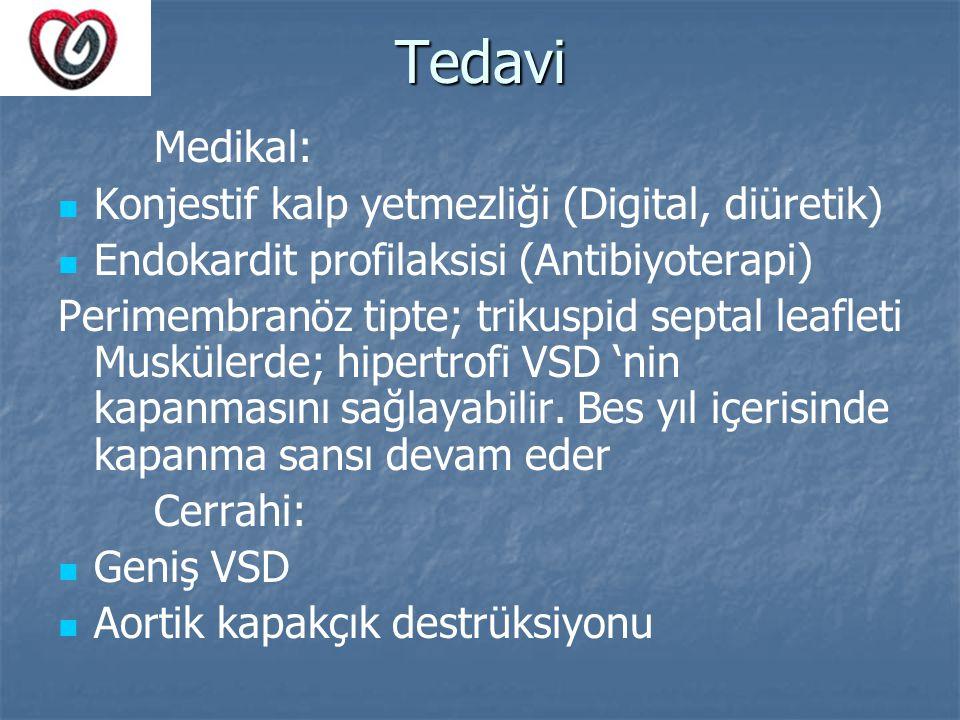 Tedavi Medikal: Konjestif kalp yetmezliği (Digital, diüretik)