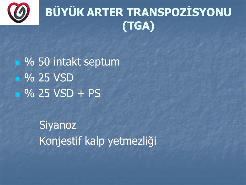 BÜYÜK ARTER TRANSPOZİSYONU (TGA)