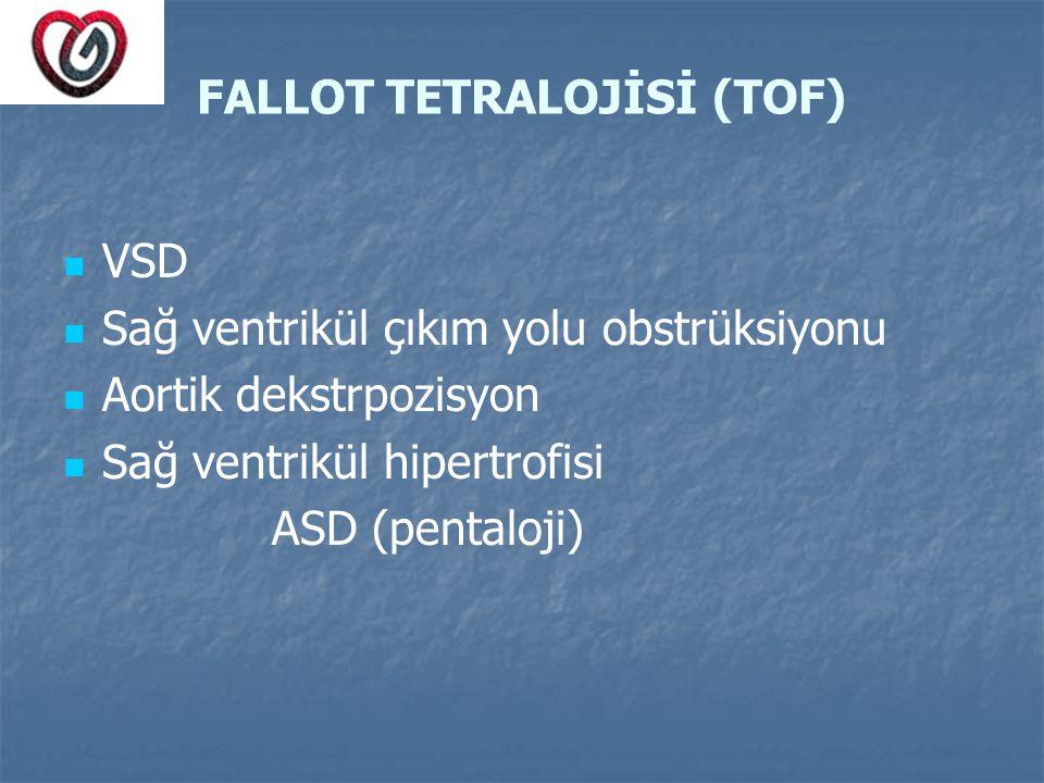 FALLOT TETRALOJİSİ (TOF)